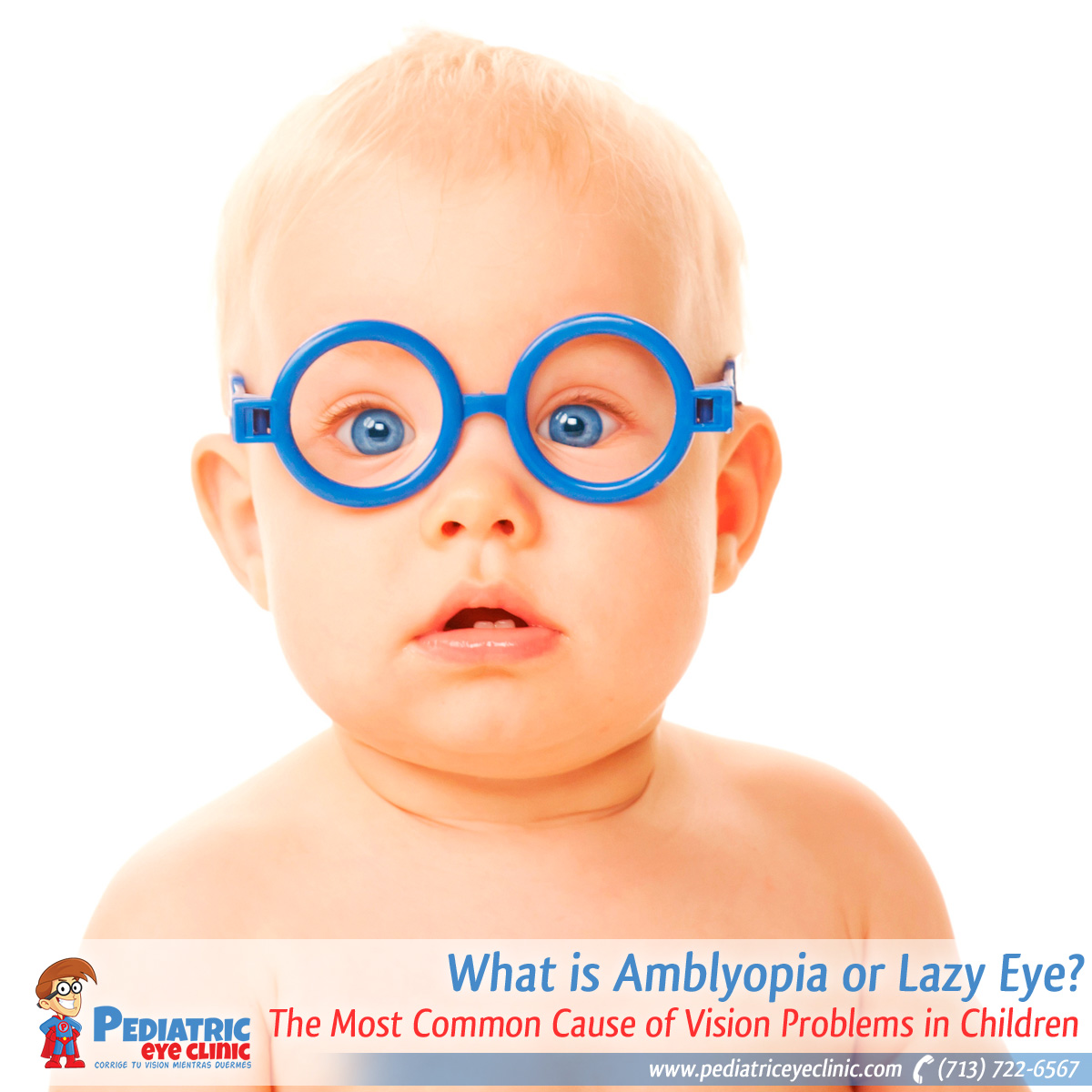 19-what-is-amblyopia-or-lazy-eye