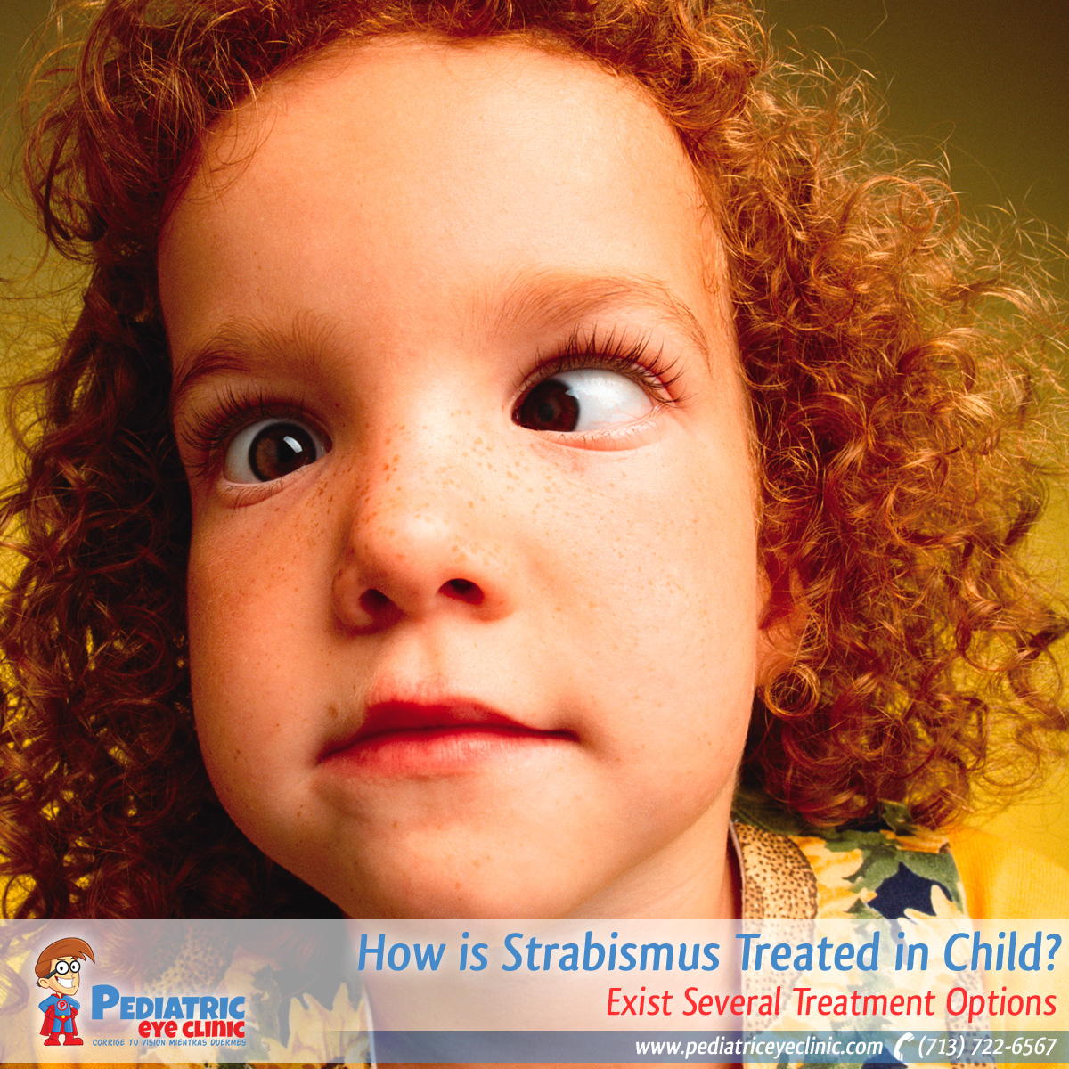 13-how-is-strabismus-treated-in-child