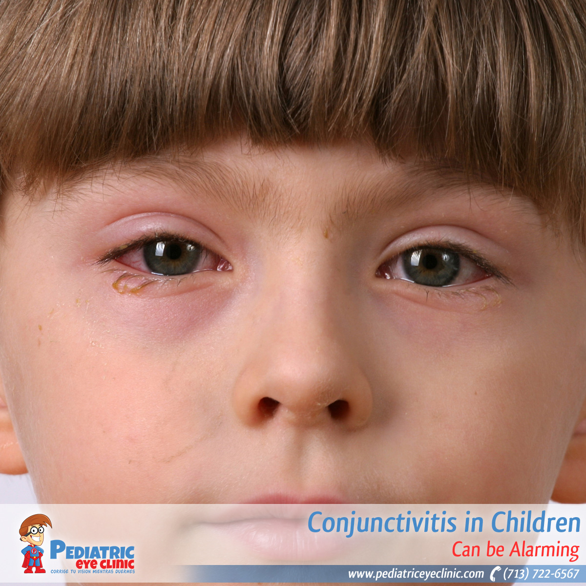 21-conjuctivitis-in-children
