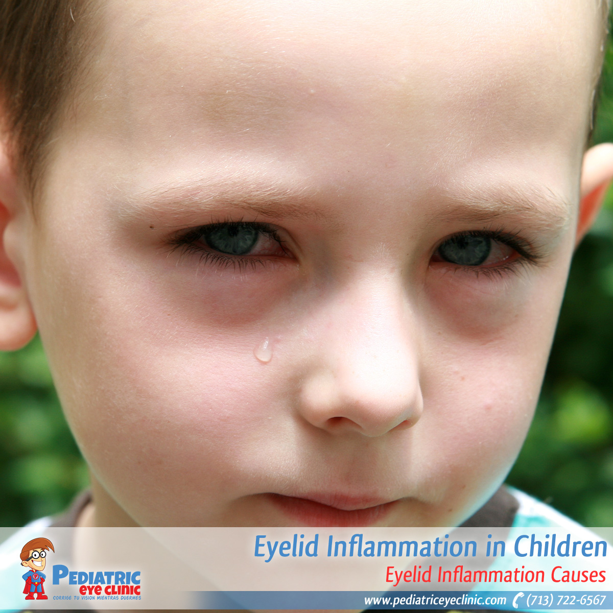 25-eyelid-inflammation-in-children
